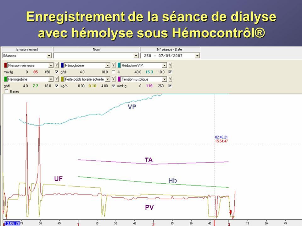 Enregistrement de la séance de dialyse avec hémolyse sous Hémocontrôl®