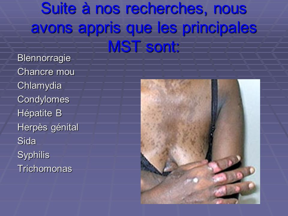 Suite à nos recherches, nous avons appris que les principales MST sont: