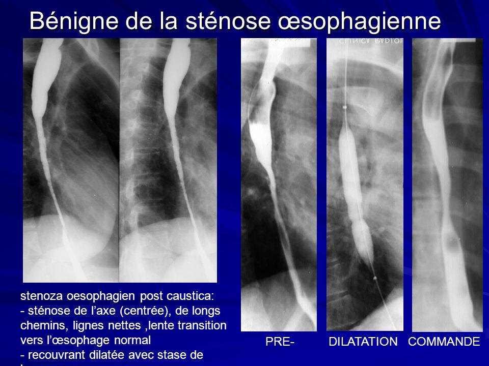 Bénigne de la sténose œsophagienne