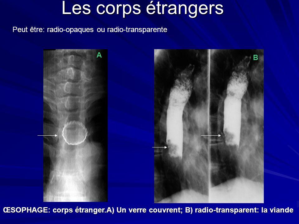 Les corps étrangers Peut être: radio-opaques ou radio-transparente A B
