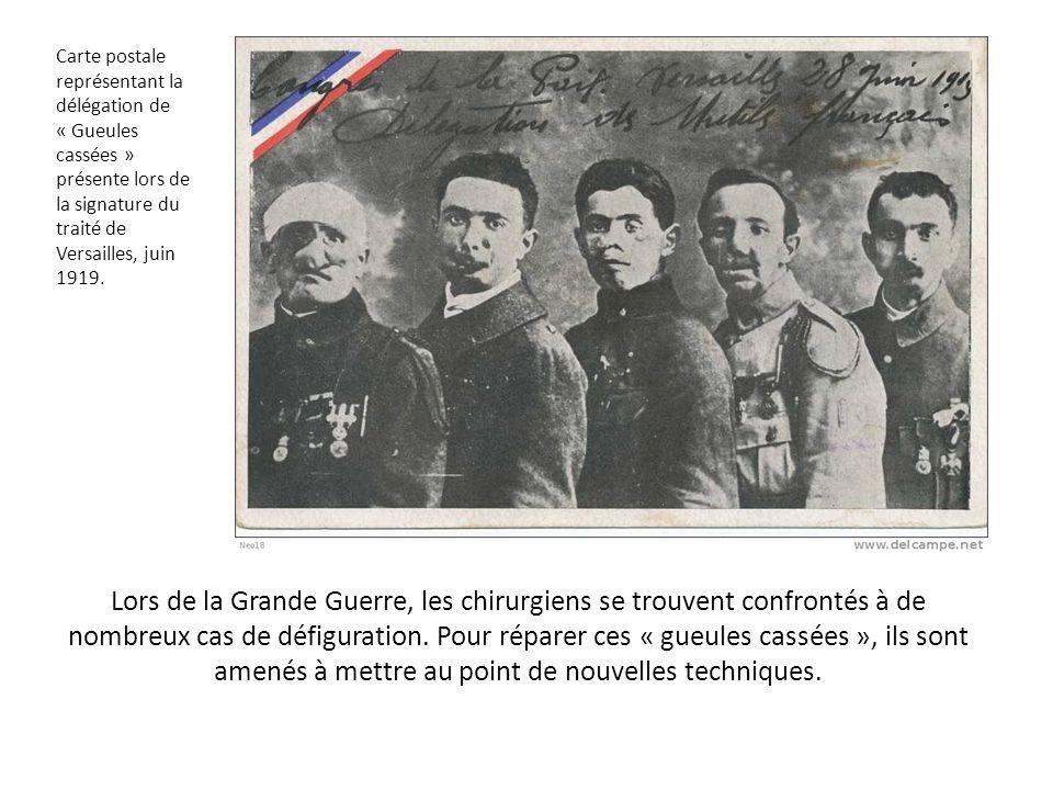 Carte postale représentant la délégation de « Gueules cassées » présente lors de la signature du traité de Versailles, juin 1919.