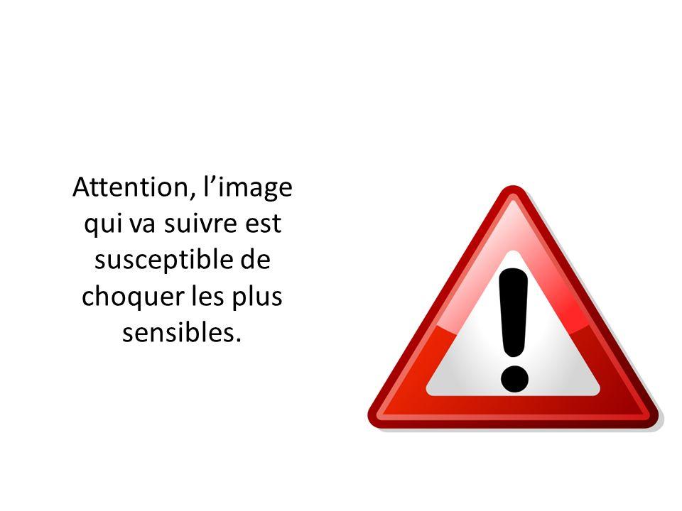 Attention, l'image qui va suivre est susceptible de choquer les plus sensibles.