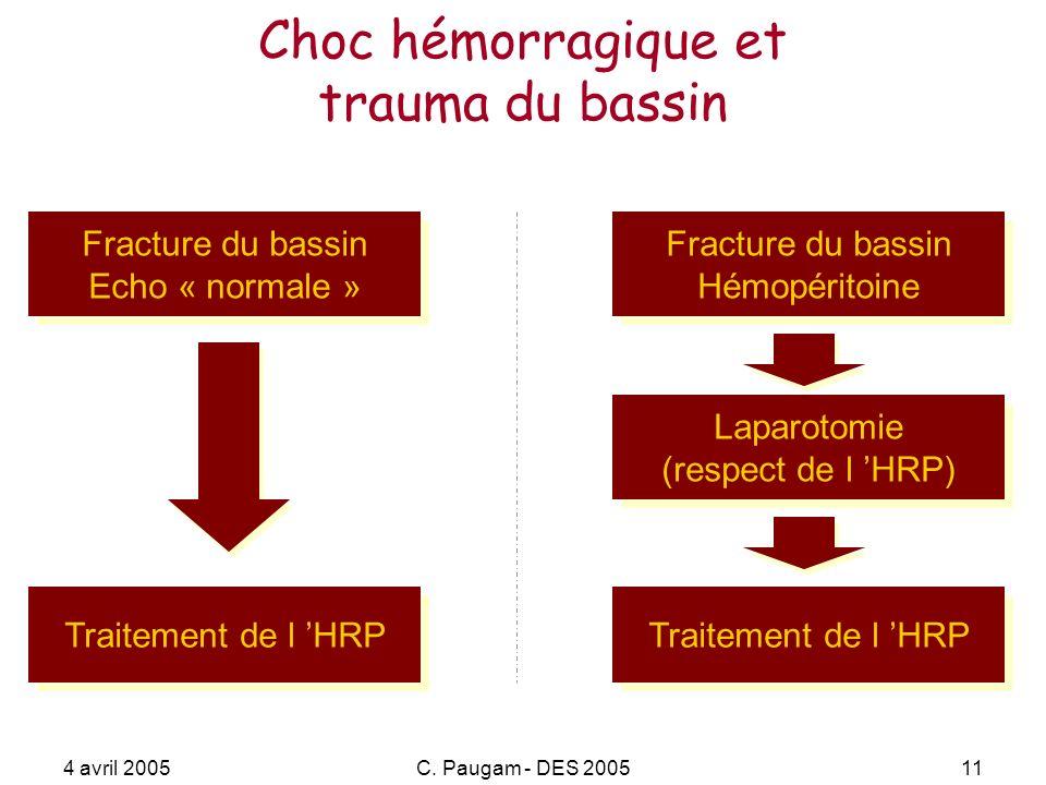 Choc hémorragique et trauma du bassin