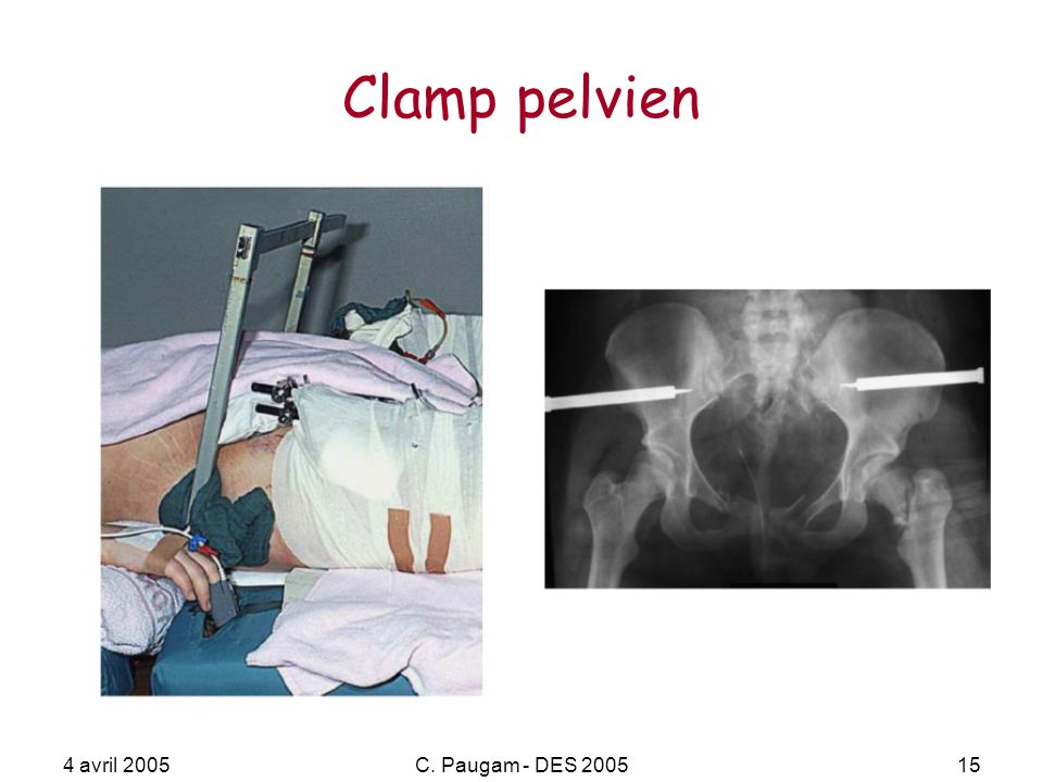 Clamp pelvien 4 avril 2005 C. Paugam - DES 2005
