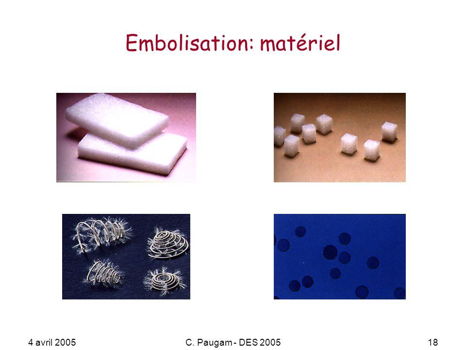 Embolisation: matériel