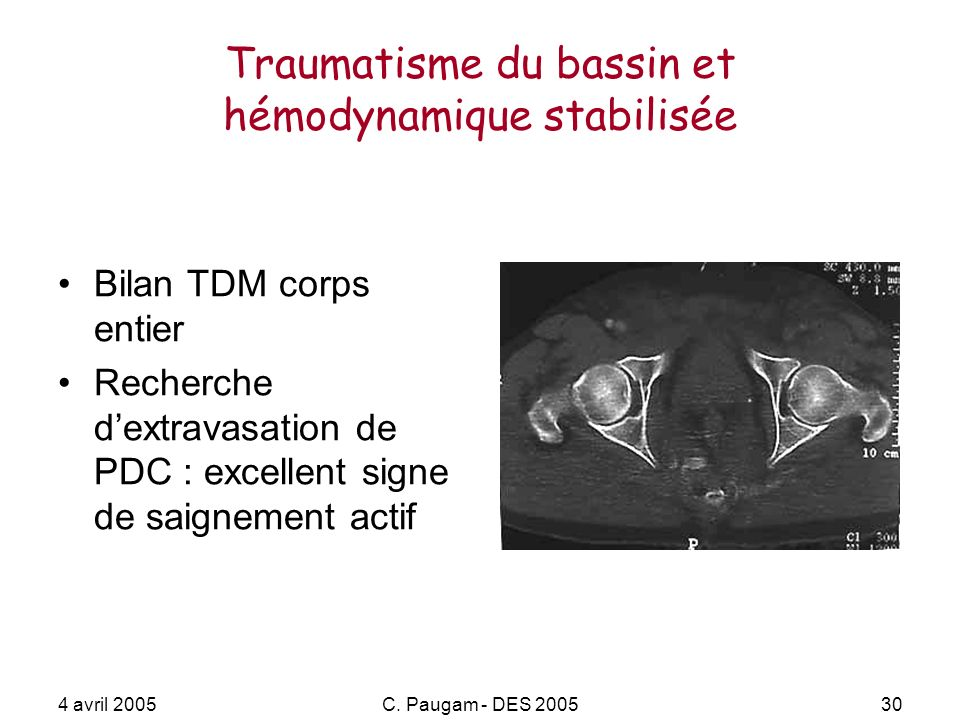 Traumatisme du bassin et hémodynamique stabilisée