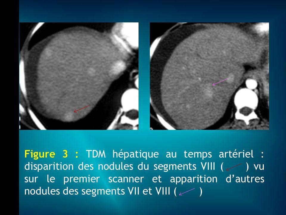 Figure 3 : TDM hépatique au temps artériel : disparition des nodules du segments VIII ( ) vu sur le premier scanner et apparition d'autres nodules des segments VII et VIII ( )
