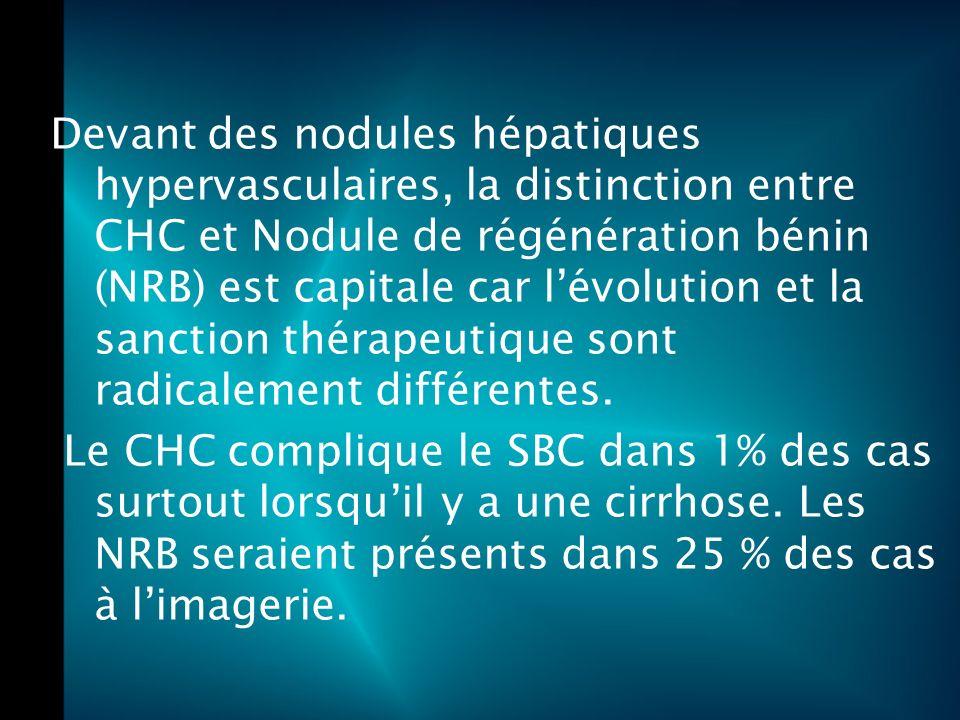 Devant des nodules hépatiques hypervasculaires, la distinction entre CHC et Nodule de régénération bénin (NRB) est capitale car l'évolution et la sanction thérapeutique sont radicalement différentes.