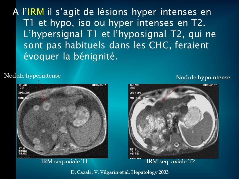 D. Cazals, V. Vilgarin et al. Hepatology 2003