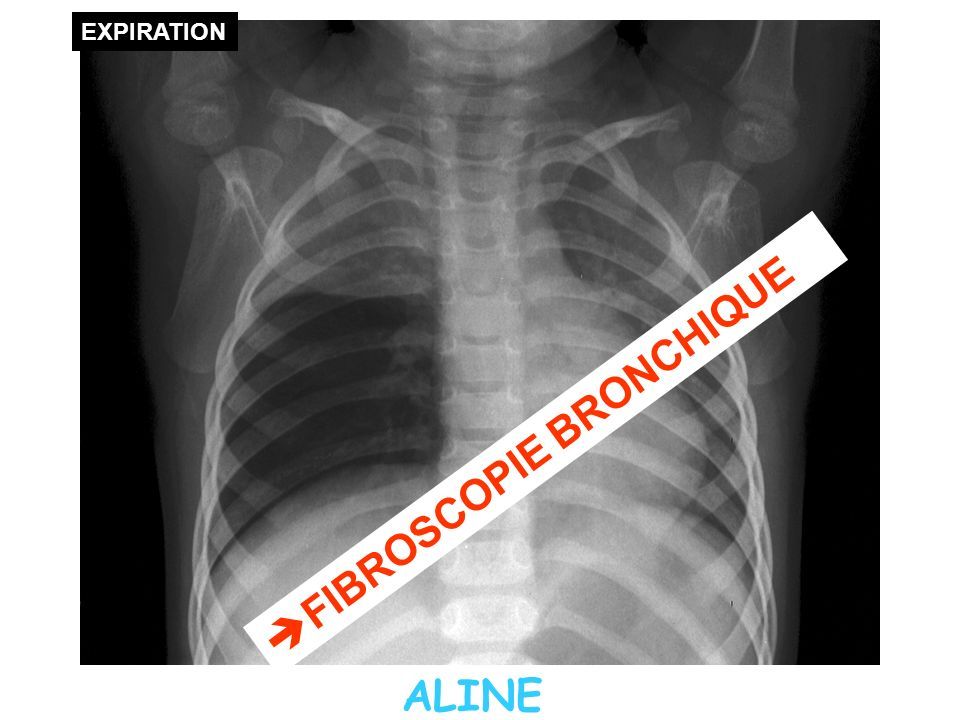 FIBROSCOPIE BRONCHIQUE