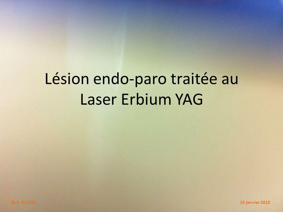 Lésion endo-paro traitée au Laser Erbium YAG
