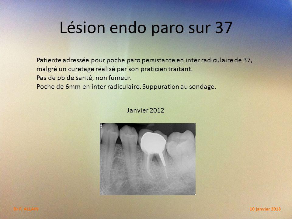 Lésion endo paro sur 37 Patiente adressée pour poche paro persistante en inter radiculaire de 37,