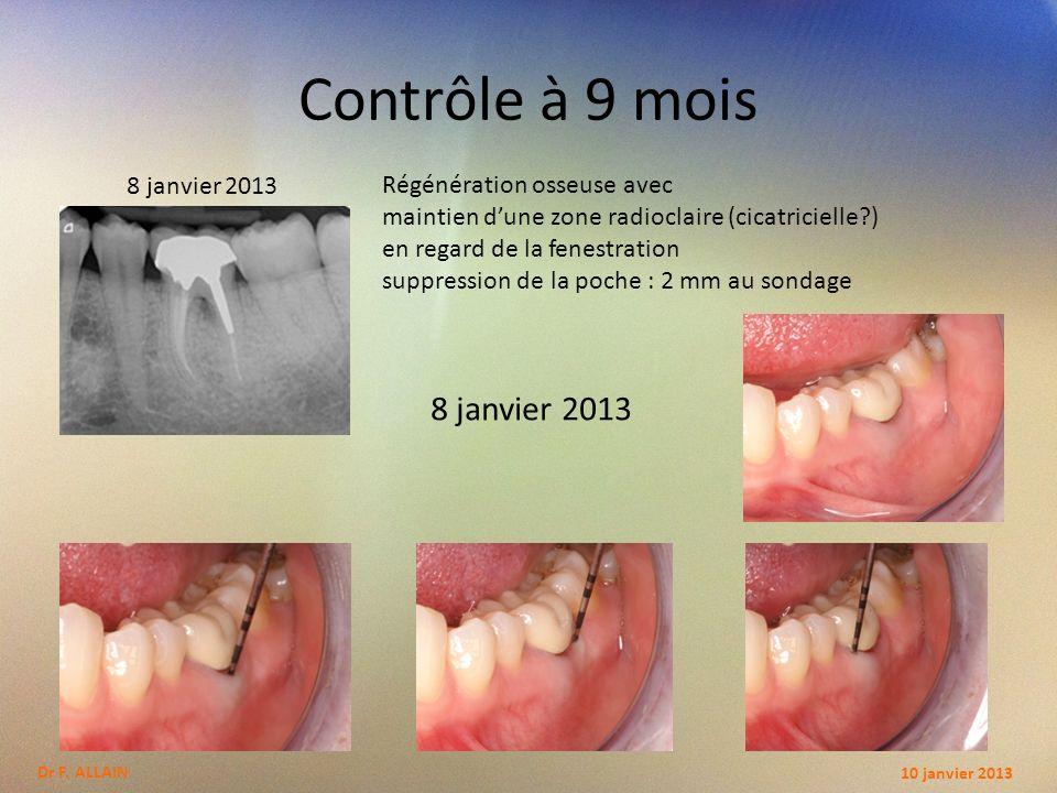 Contrôle à 9 mois 8 janvier 2013 8 janvier 2013
