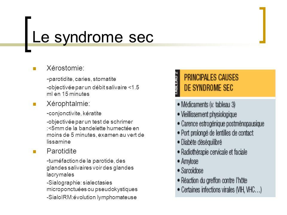 Le syndrome sec Xérostomie: -parotidite, caries, stomatite
