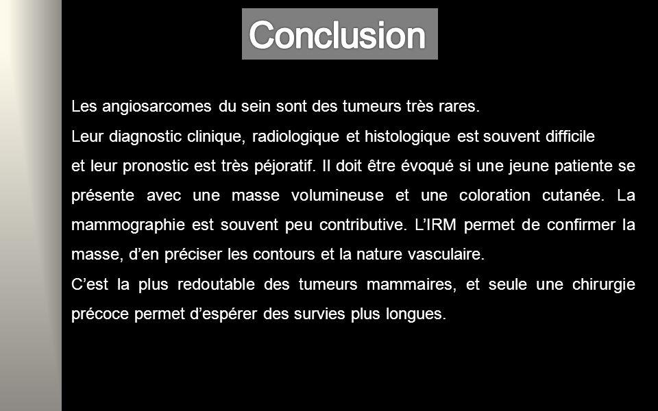 Conclusion Les angiosarcomes du sein sont des tumeurs très rares.
