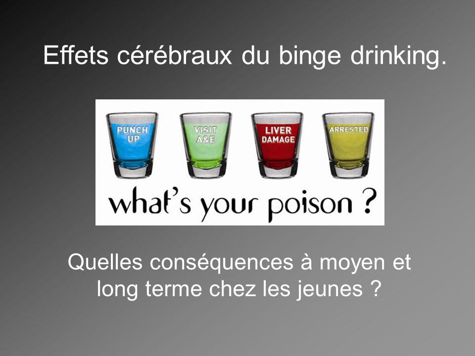Effets cérébraux du binge drinking.