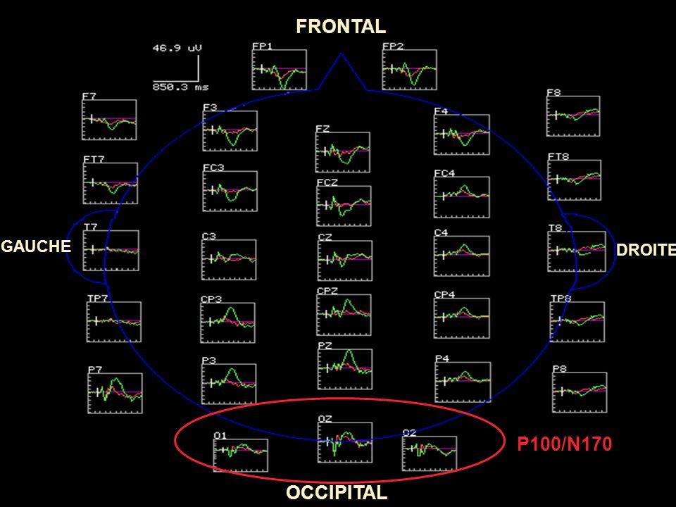 FRONTAL GAUCHE DROITE P100/N170 OCCIPITAL