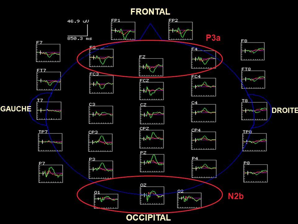 FRONTAL P3a GAUCHE DROITE N2b OCCIPITAL