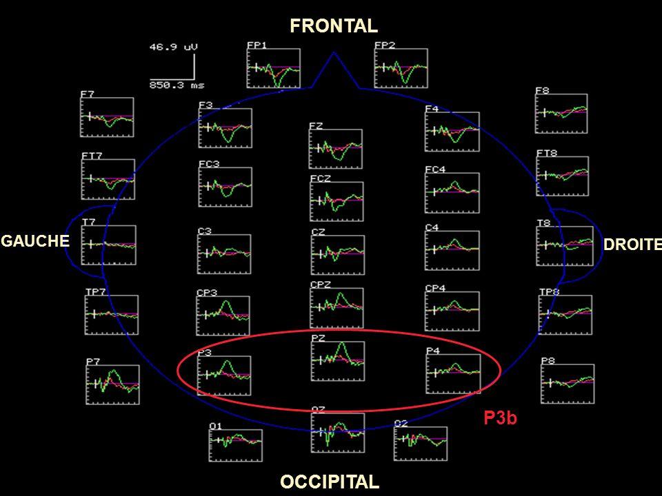 FRONTAL GAUCHE DROITE P3b OCCIPITAL