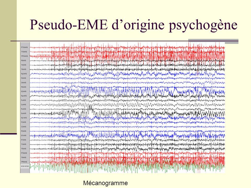 Pseudo-EME d'origine psychogène