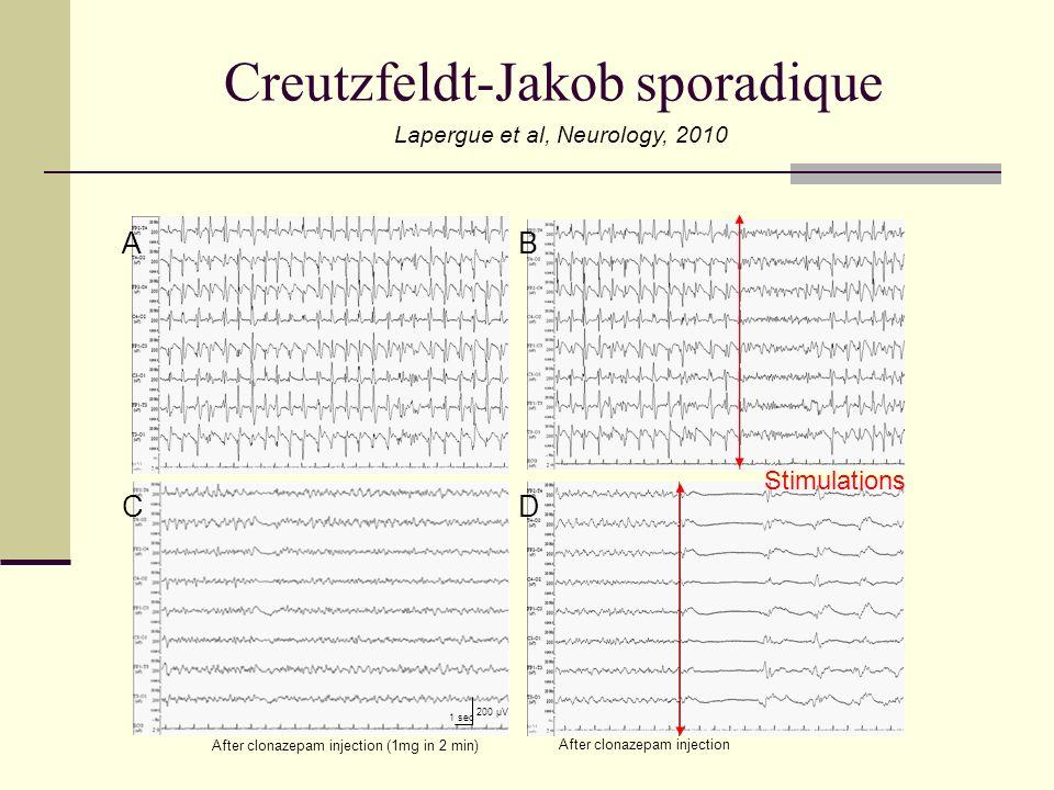 Creutzfeldt-Jakob sporadique