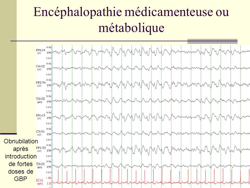 Encéphalopathie médicamenteuse ou métabolique