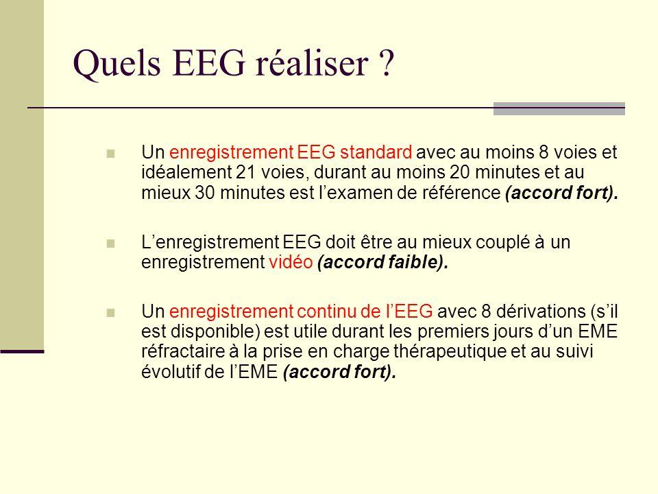 Quels EEG réaliser
