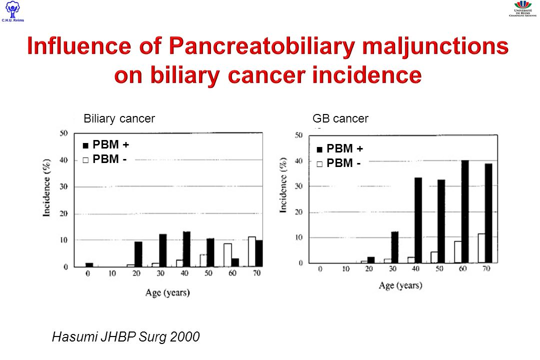 Influence of Pancreatobiliary maljunctions on biliary cancer incidence