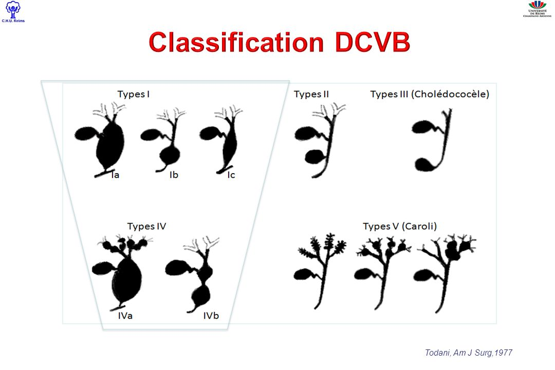 Classification DCVB Todani, Am J Surg,1977