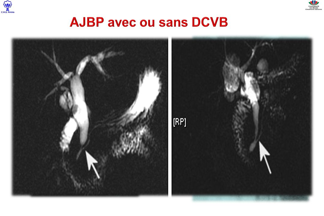 AJBP avec ou sans DCVB