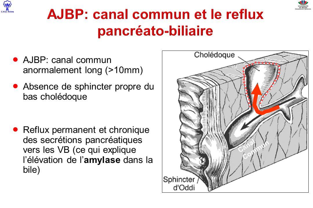 AJBP: canal commun et le reflux pancréato-biliaire