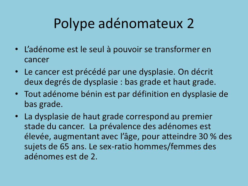 Polype adénomateux 2 L'adénome est le seul à pouvoir se transformer en cancer.