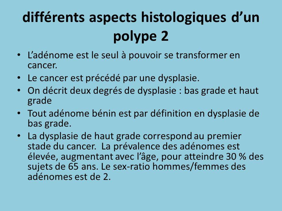 différents aspects histologiques d'un polype 2