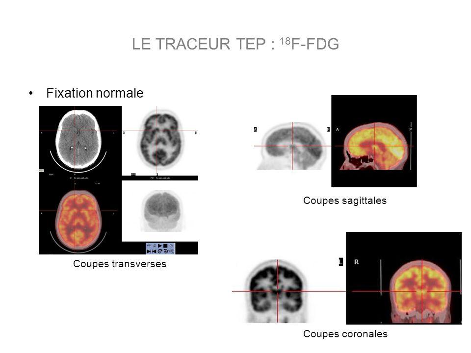 LE TRACEUR TEP : 18F-FDG Fixation normale Coupes sagittales