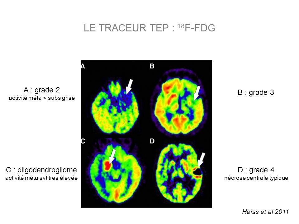 LE TRACEUR TEP : 18F-FDG A : grade 2 B : grade 3 C : oligodendrogliome