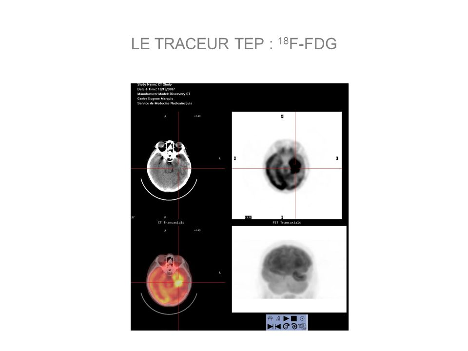LE TRACEUR TEP : 18F-FDG