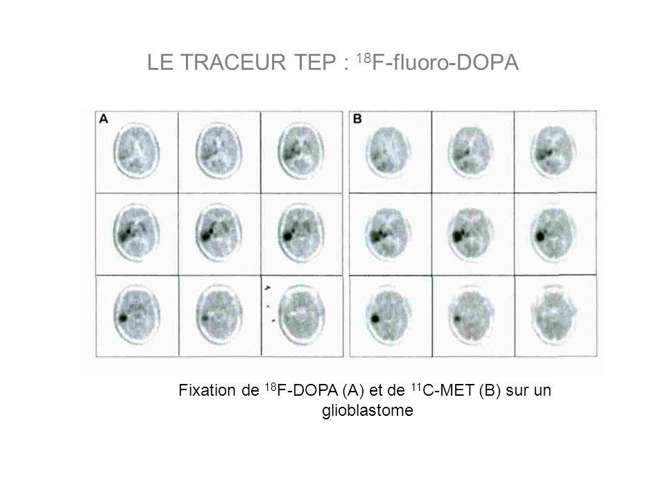 LE TRACEUR TEP : 18F-fluoro-DOPA