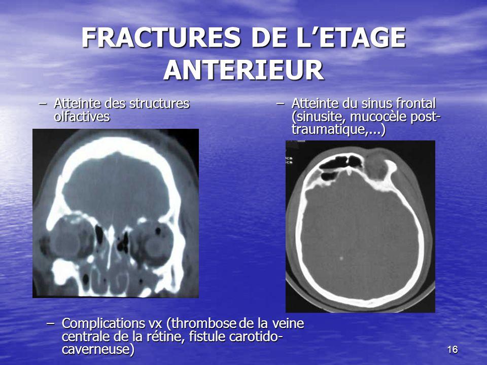 FRACTURES DE L'ETAGE ANTERIEUR