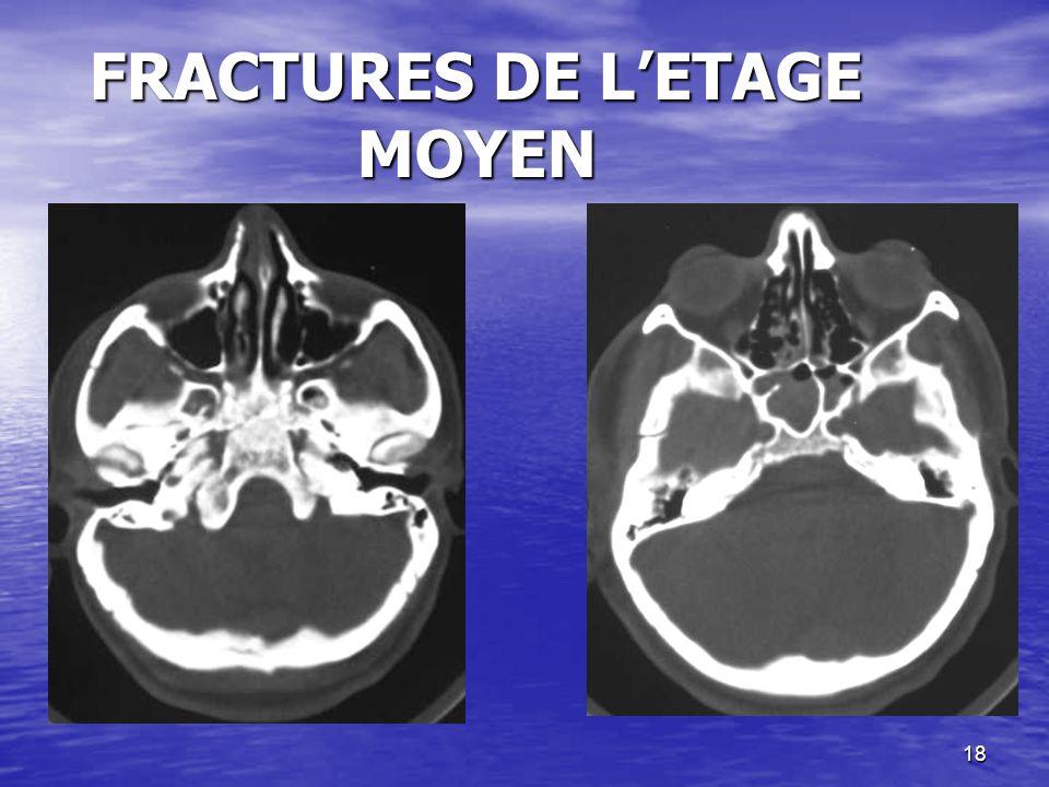 FRACTURES DE L'ETAGE MOYEN