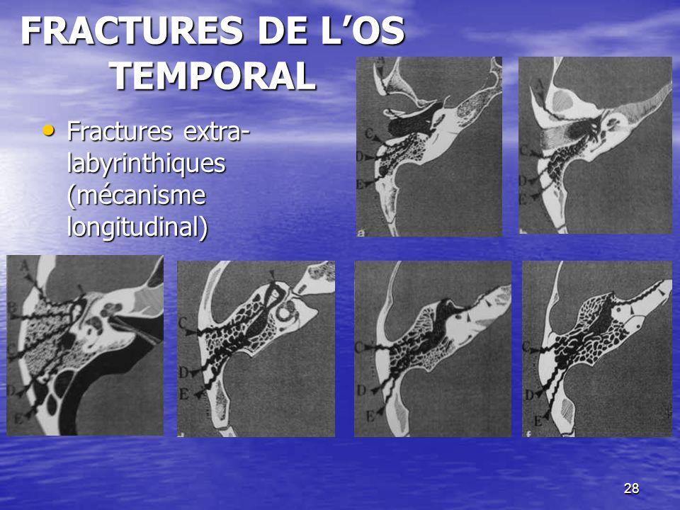 FRACTURES DE L'OS TEMPORAL