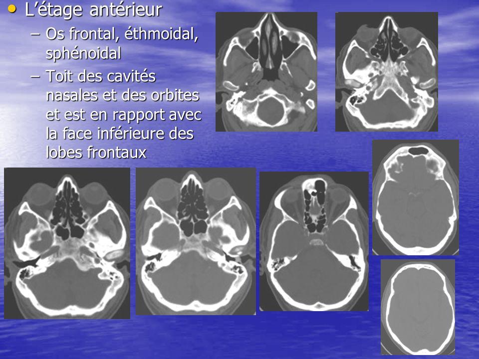 L'étage antérieur Os frontal, éthmoidal, sphénoidal