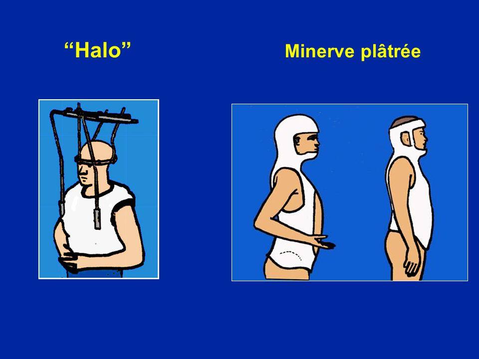 Halo Minerve plâtrée