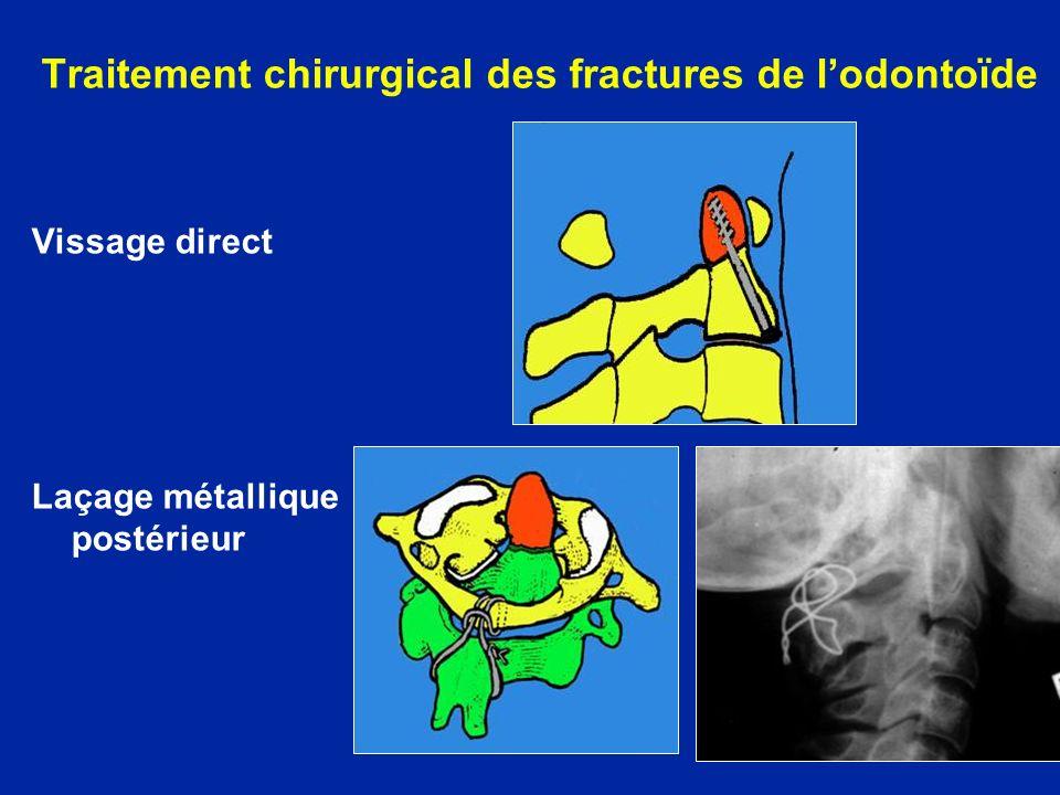 Traitement chirurgical des fractures de l'odontoïde