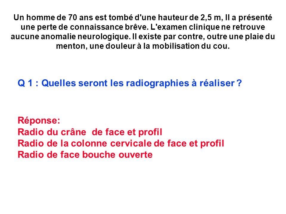 Q 1 : Quelles seront les radiographies à réaliser