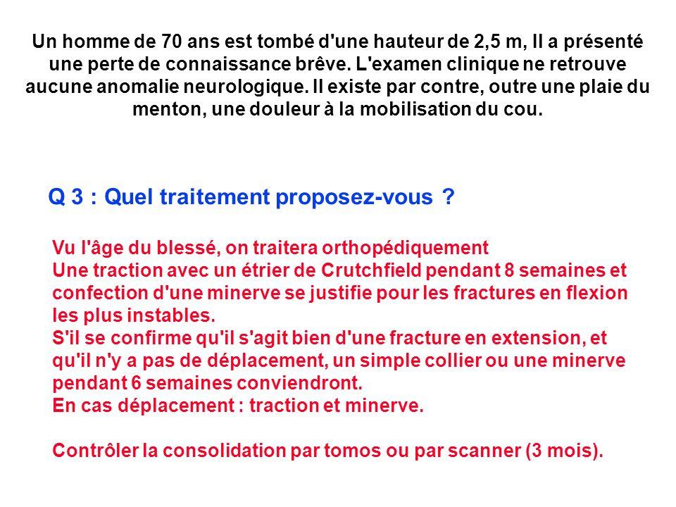 Q 3 : Quel traitement proposez-vous