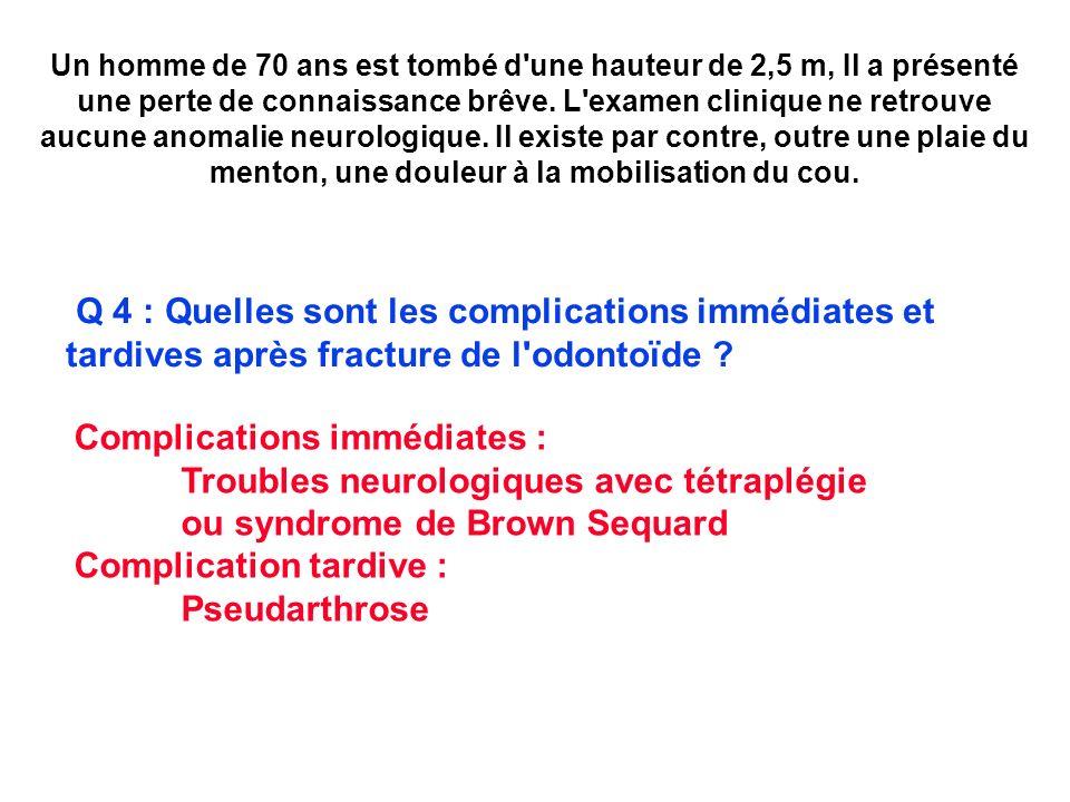 Complications immédiates : Troubles neurologiques avec tétraplégie