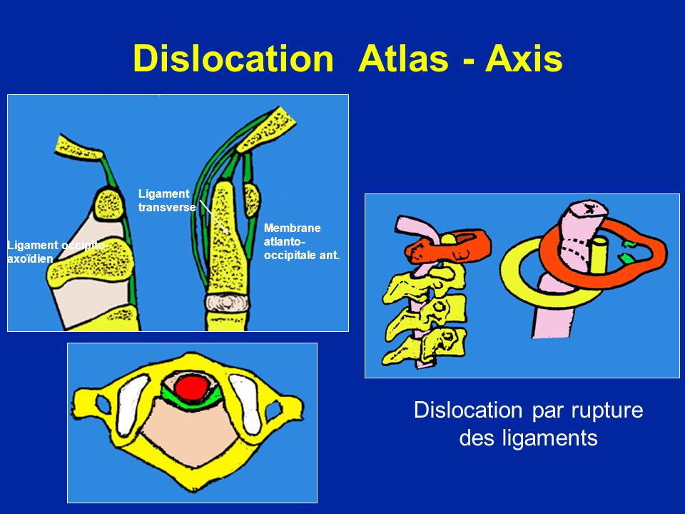 Dislocation Atlas - Axis