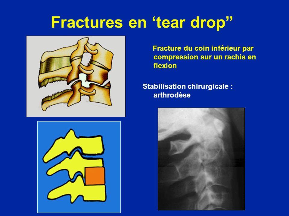 Fractures en 'tear drop