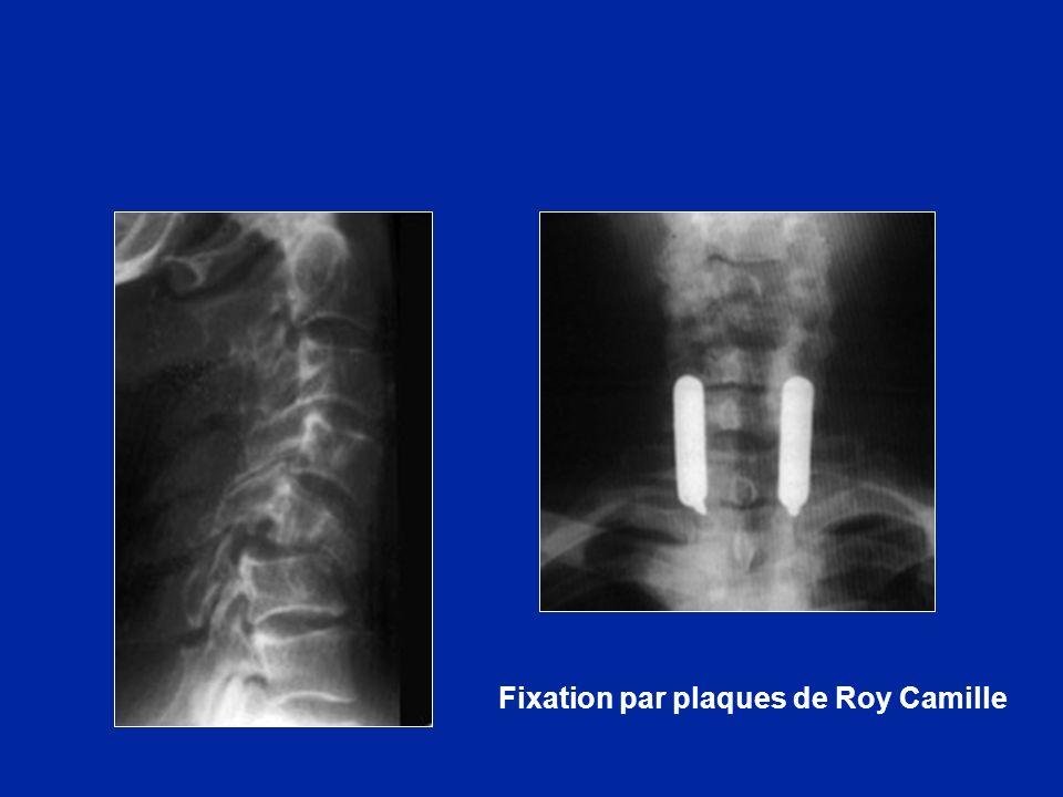 Fixation par plaques de Roy Camille