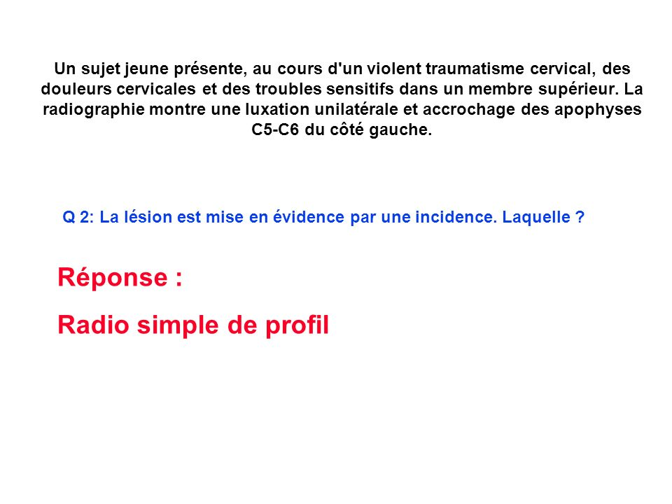 Réponse : Radio simple de profil